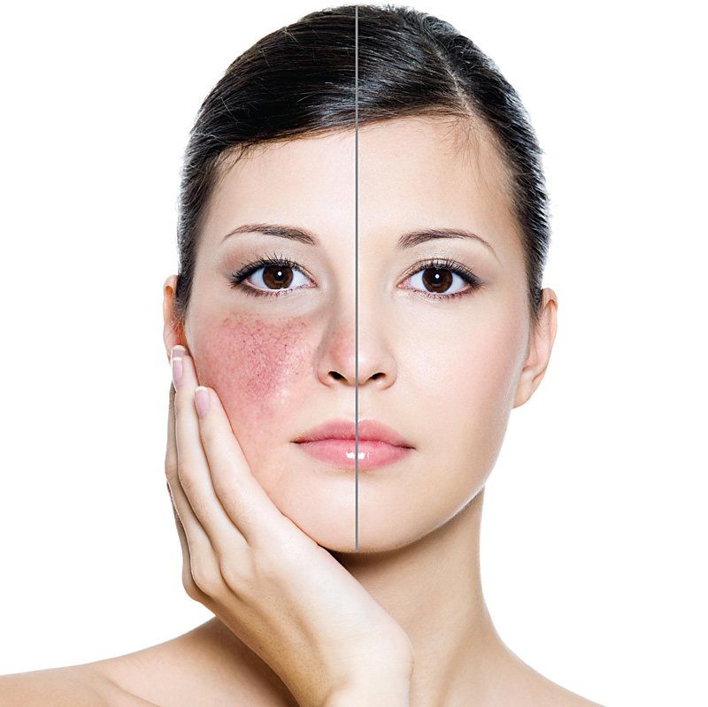 Natural Skin Lightener For Melasma